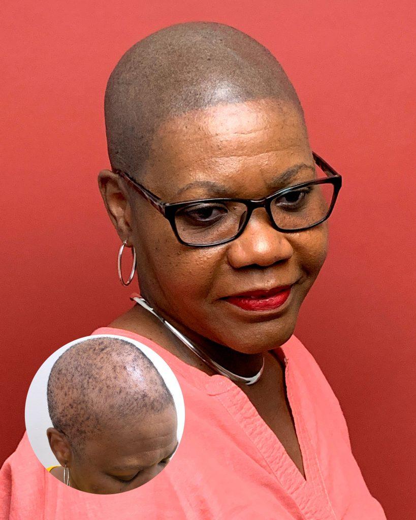 alopecia gallery Gallery alopecia 819x1024