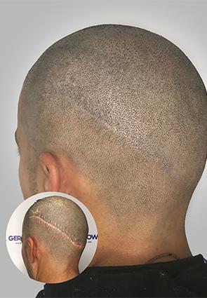 scalp micropigmentation Home hair transplant scars